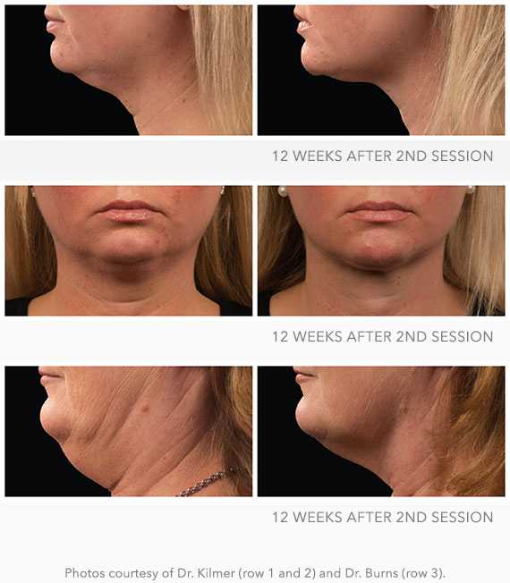 Before & After CoolMini - 2 Sessions | Los Angeles Fat Freezing