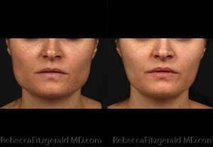 Botox for Masseters - Before & After | Rebecca Fitzgerald MD
