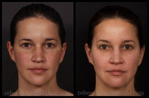 Clear + Brilliant Laser Before and After | Rebecca Fitzgerald MD
