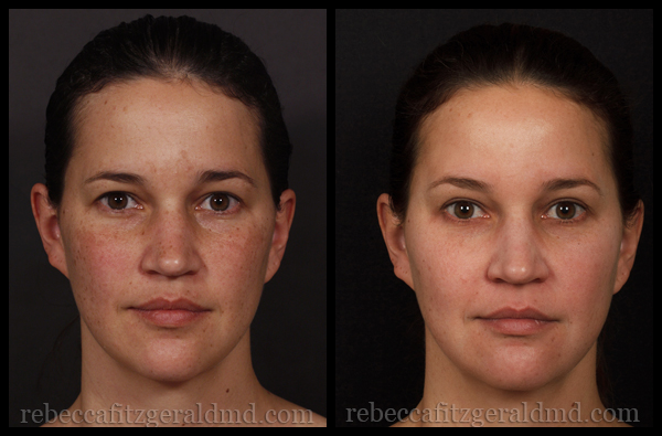 Clear + Brilliant Laser Treatment - Before & After | Rebecca Fitzgerald MD