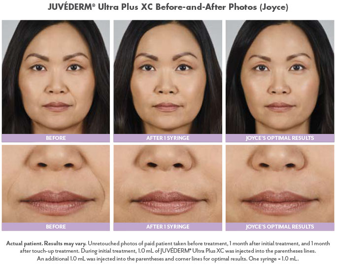 Juvederm filler results