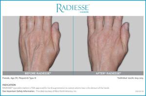 Radiesse Hands Patient Age 59 - Rebecca Fitzgerald MD