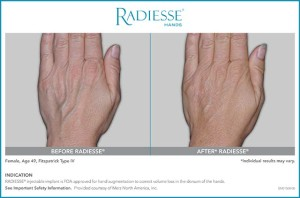 Radiesse for hands 49 year old patient - Rebecca Fitzgerald MD