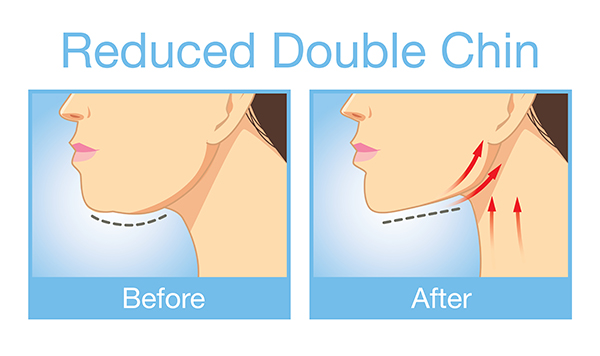 Get Rid of Your Double Chin Without Surgery or Injections | LA