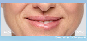 Restylane Silk before and after - Dr. Rebecca Fitzgerald