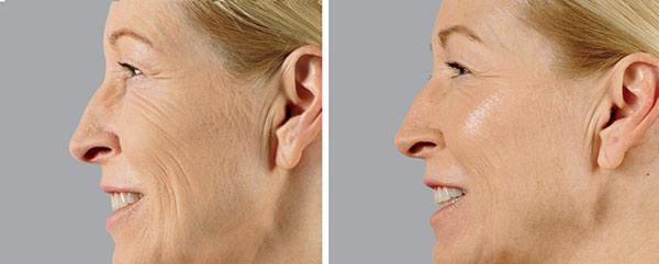 Voluma Cheek Augmentation - Before & After