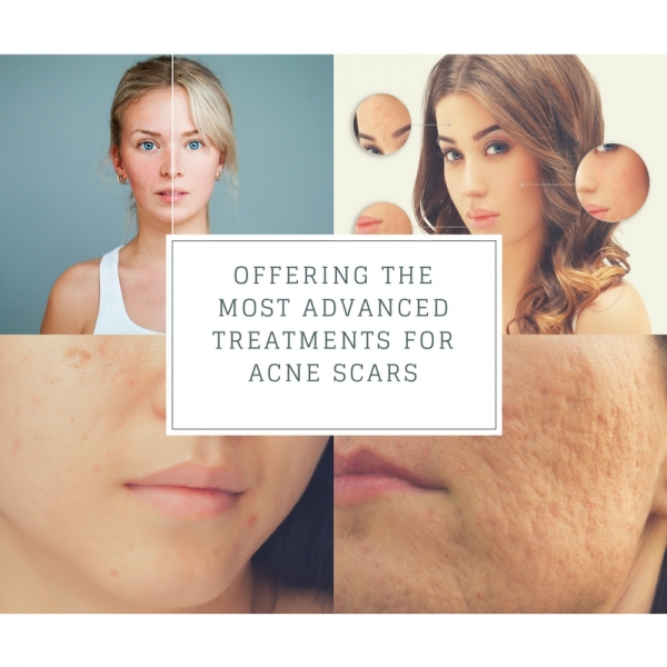 acne scar treatment options in Los Angeles