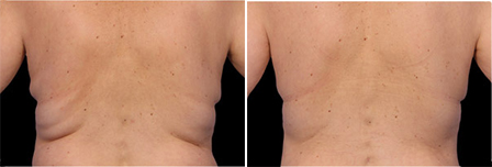 how to get the best coolsculpting results