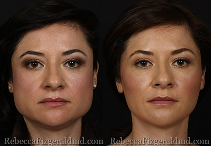 Jaw Reduction with BOTOX - Before & After