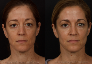 Before and After Botox and Filler | Rebecca Fitzgerald MD