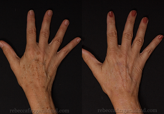 Fotofacial Treatment for Hands - Rebecca Fitzgerald MD