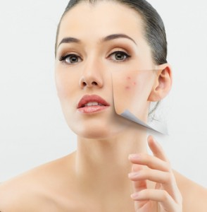 Chemical Peels for Skin Rejuvenation - Rebecca Fitzgerald MD