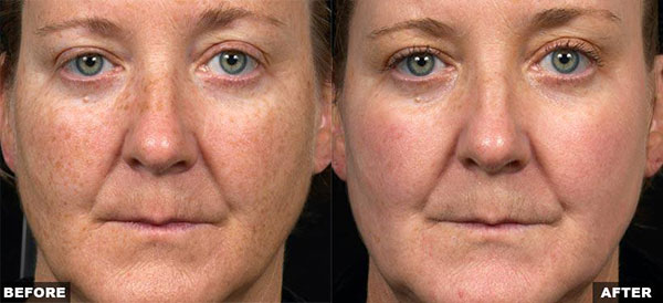 Fraxel Dual Pigmentation Treatment - Before & After Female Face
