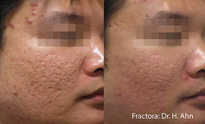 Fractora for Acne Scarring