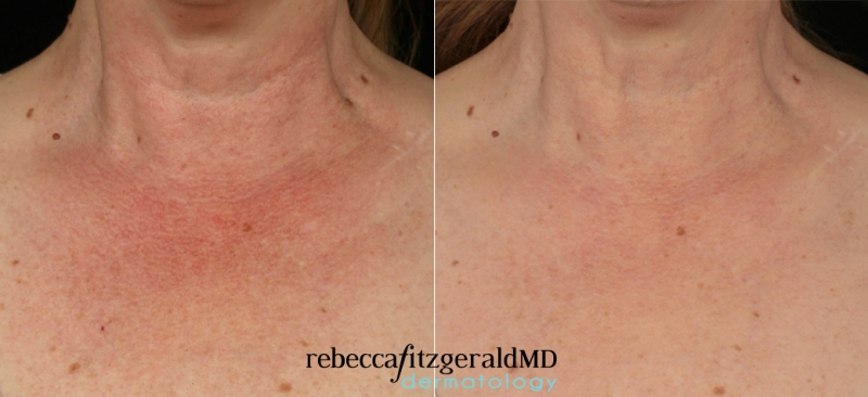 Results Excel V Chest Redness 3 Treatments