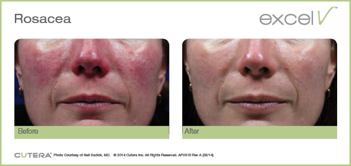 Excel V Rosacea Before and After