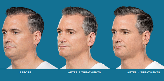 Kybella candidate - treatment progression
