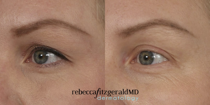 Thermage Eyes Results Angle