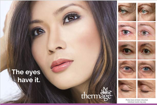 Thermage Tightening for Eyes