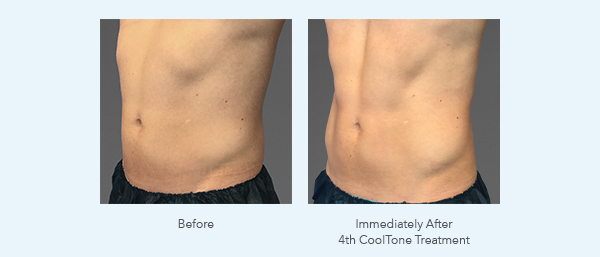 CoolTone Results for Abdomen