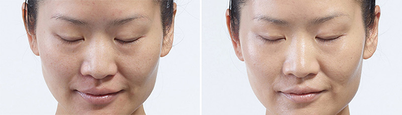 Diamond Glow results after one treatment