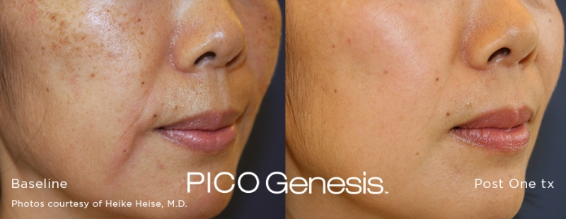 Pico Genesis Before and After 1 Treatment