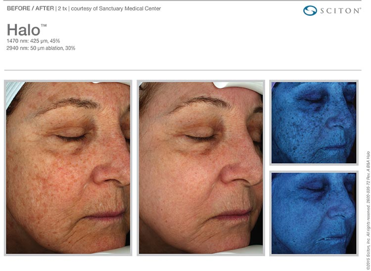 Halo Laser Before and After 2 Treatments