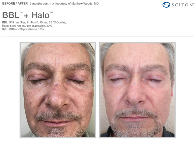 Halo and BBl Combination treatments