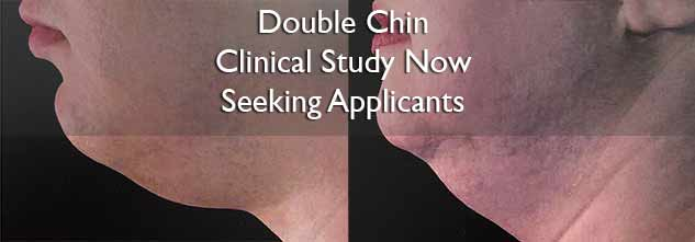 Clinical Study Open to Applicants