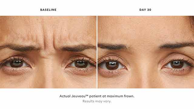 Jeuveau patient results