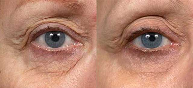 Thermage Eyes Before and After