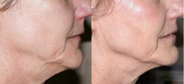 Results Thermage Lower Face and Jowls