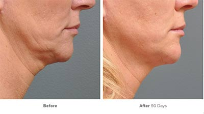 Results of Ultherapy under Chin