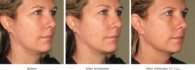 Ultherapy simultation and actual results