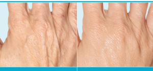 Hand rejuvenation - Los Angeles, Beverly Hills