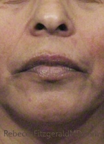 Lower female face after Cosmelan peel to reduce pigmentation