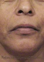Lower female face before Cosmelan peel