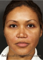 Patient prior to treatment with Fraxel on the face