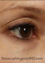 Female right eye area after Laser Reduction of Discoloration