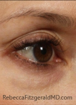 Female right eye area before Laser Reduction of Discoloration