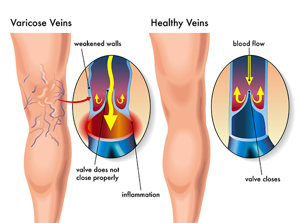 Causes of Varicose Veins | Los Angeles Dermatologist