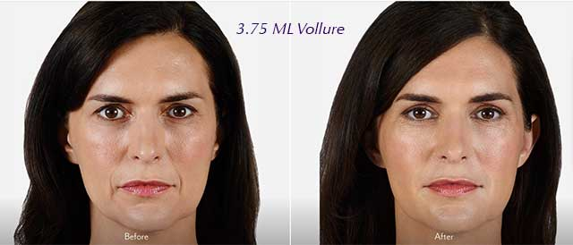 patient images before and after Vollure filler