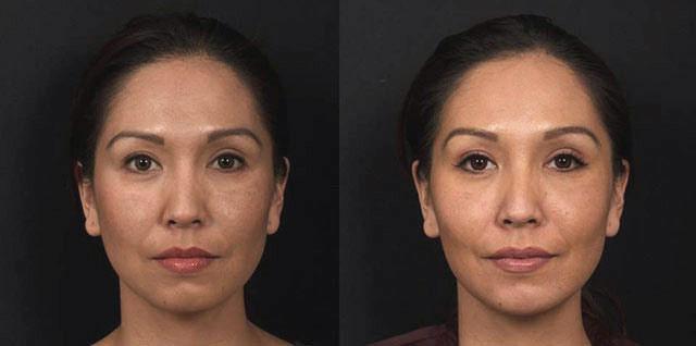 Voluma Patient Cheeks and Chin - Dr. Rebecca Fitzgerald